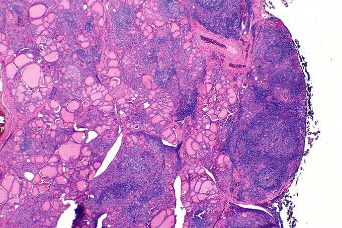 Хашимото - тиреоидит